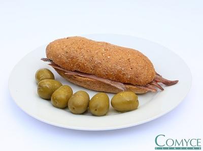 R bocadillo anchoas 1